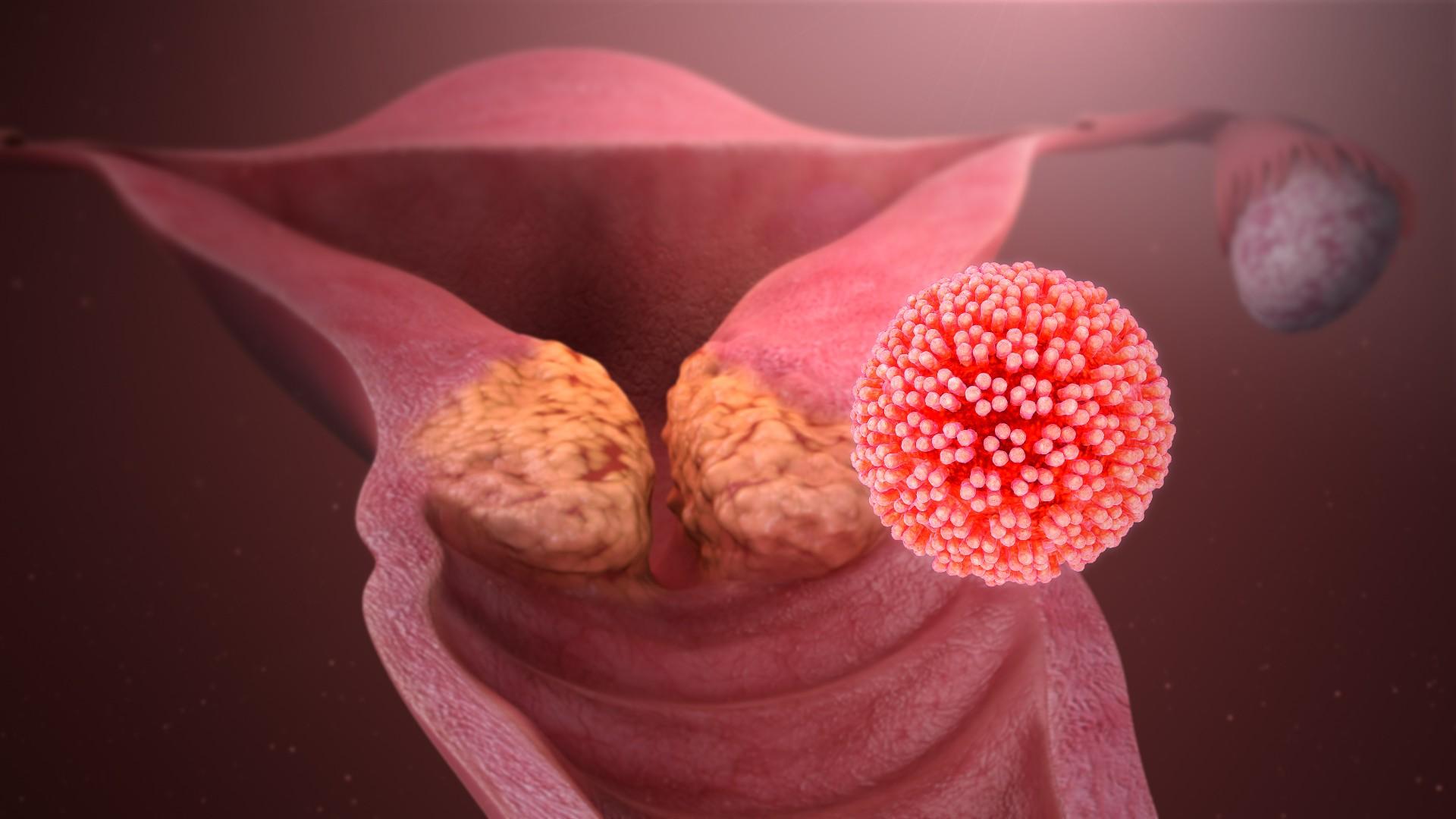 рак шейки матки при заражении папилломавирусом