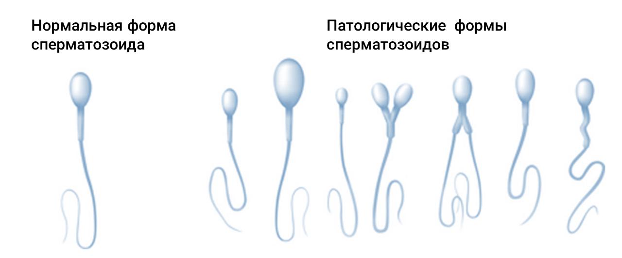 Жизнь сперматозойда при повышеной температуре