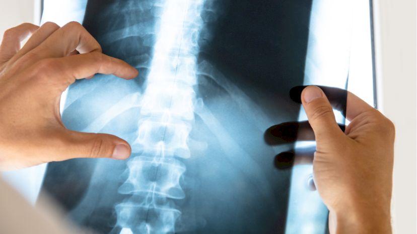 Ученые в России открыли пользу витамина В1 в лечении травм позвоночника